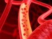Агрязнения кровеносных сосудов и потери их эластичности