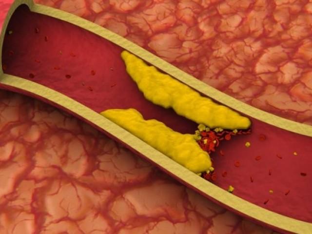 Атеросклероз.