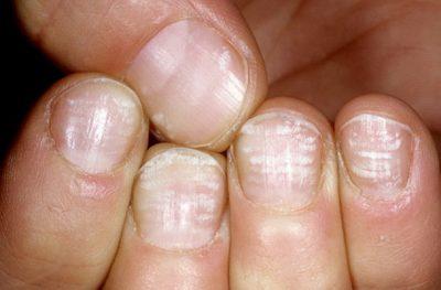 ногти цинк