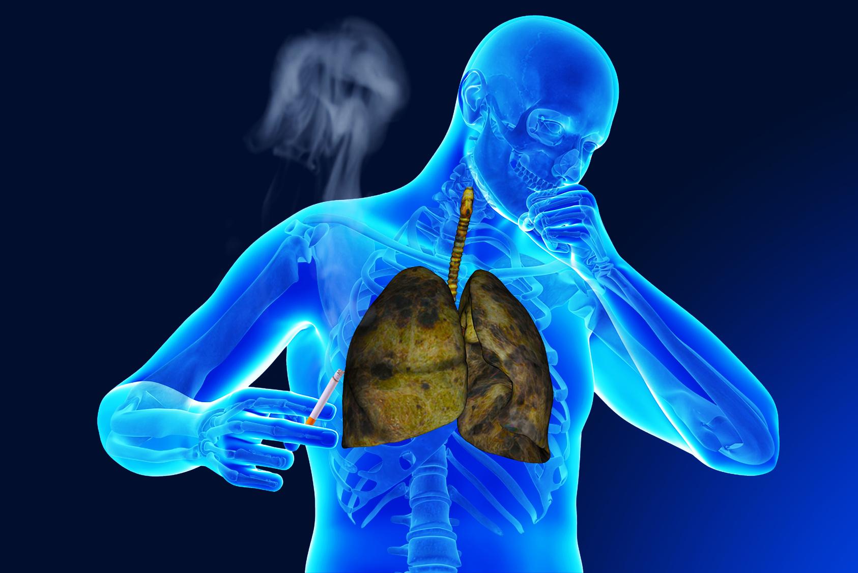 неприятный запах изо рта утром чем лечиться