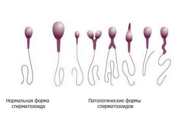 kak-viglyadyat-nezdorovie-spermatozoidi