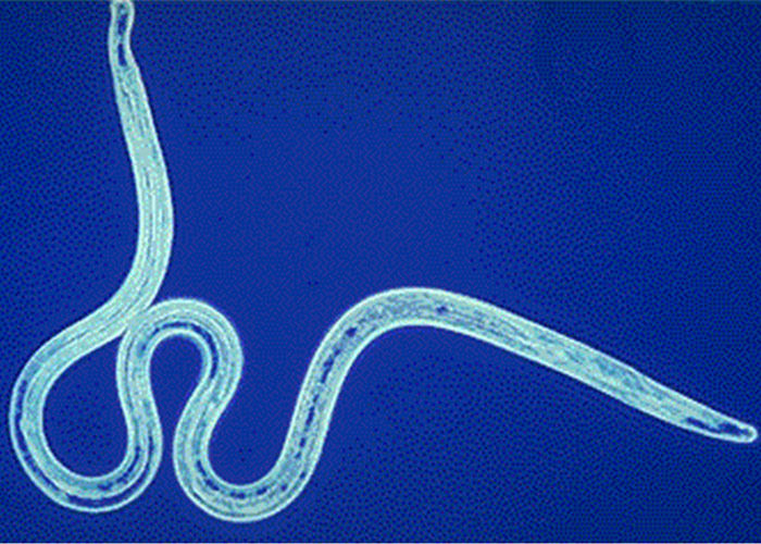 как прогнать паразитов из организма