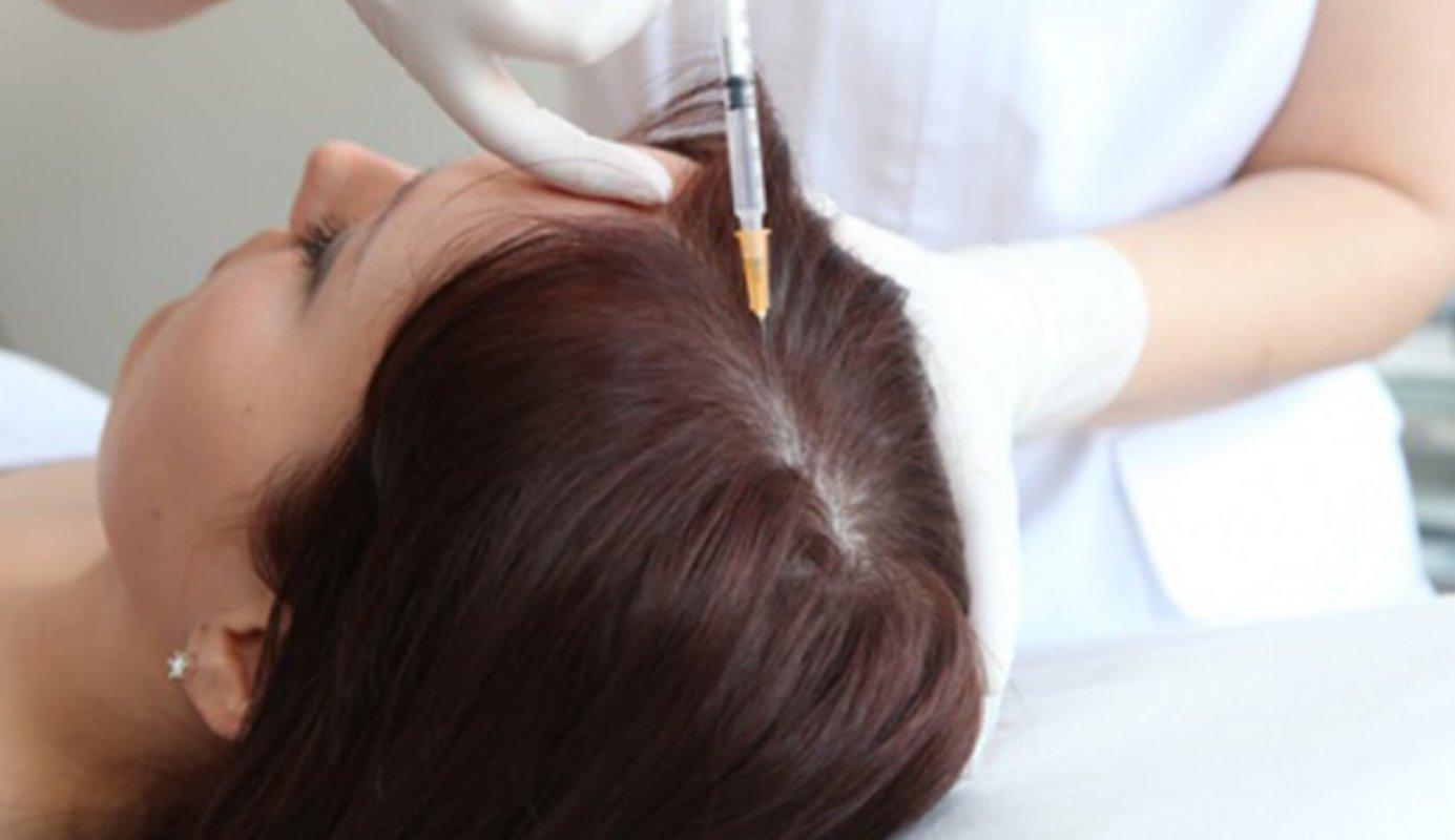 Инъекции в кожу головы