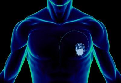 Кардиостиулятор в теле