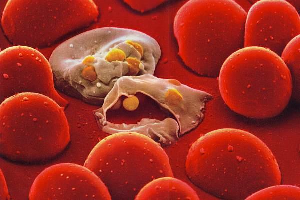 какие паразиты живут в крови человека