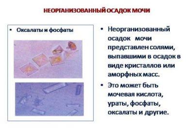 Кристаллы фосфатов уратов оксалатов
