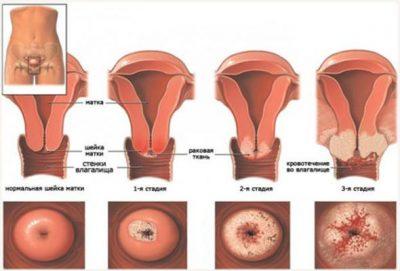 Эрозия и дисплазия шейки матки