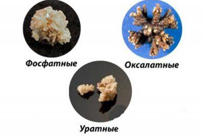 отложения солей