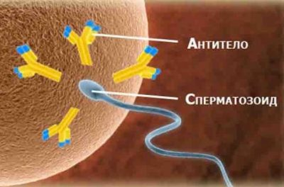 Антитела к сперме