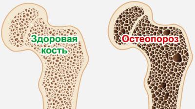 Кальций кости