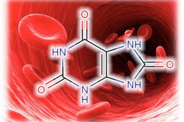 Народные средства для выведения мочевой кислоты из организма при подагре