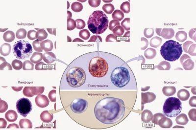 Виды лейкоцитов