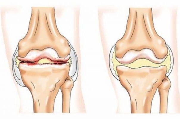 Профилактика артроза суставов и его осложнений