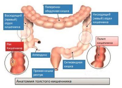 Рак кишечника