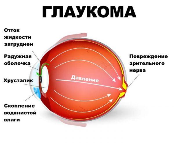 Глазные капли от катаракты и глаукомы
